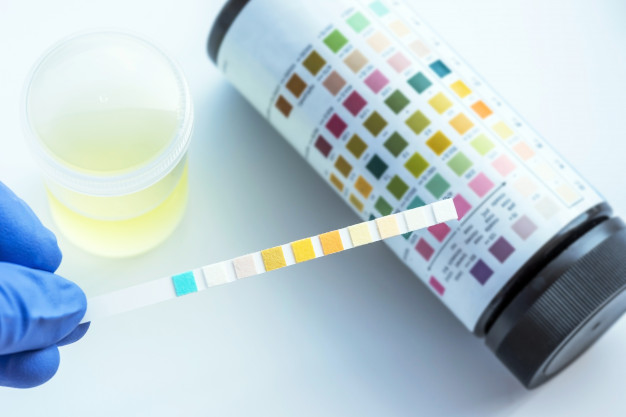 Urinalysis and Urine Health Testing Kits
