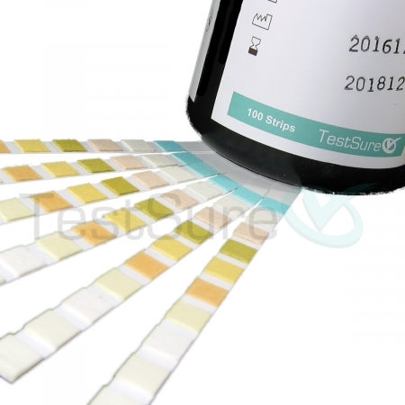 urinalysis test